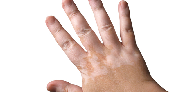 Cara Cepat Mengobati Vitiligo Sampai Tuntas